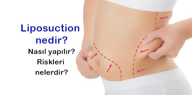 Yağ aldırma ameliyatı (Liposuction) nasıl yapılır ?