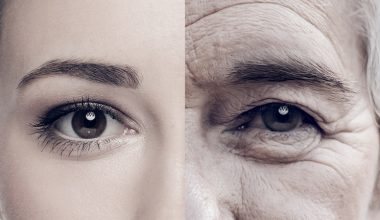 Cilt Yaşlanmasını Nasıl Geciktirirsiniz ?