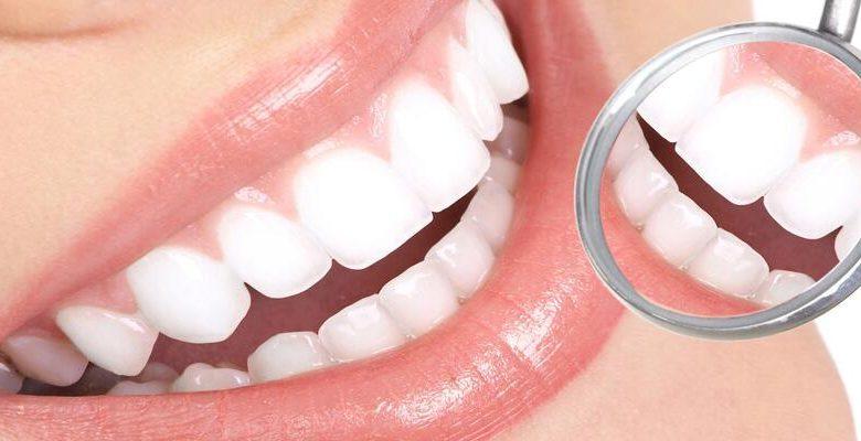Diş beyazlatma nedir ?