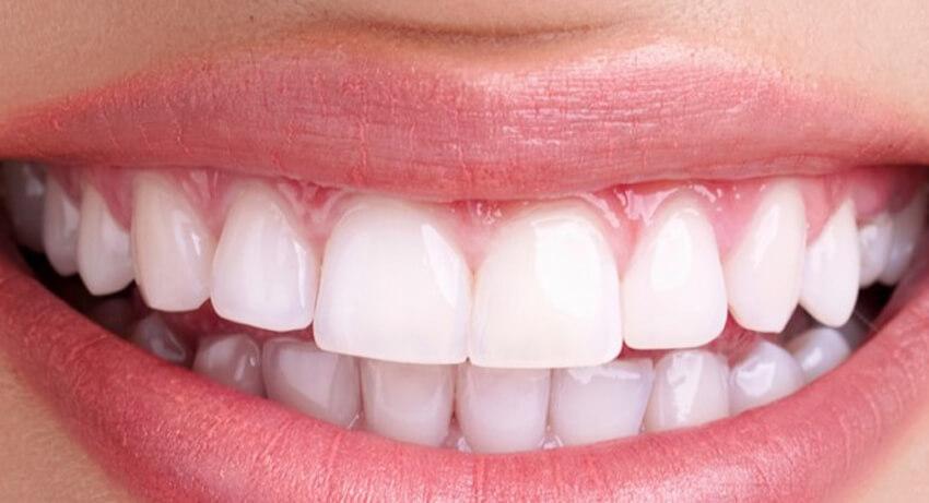 Kron kaplama dişler ağız kokusu yapar mı ?