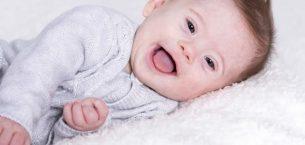 Down Sendromlu Bebeklerin Ortak Özellikleri Nelerdir?