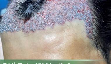 DHi saç ekimi nedir? – HairHealthIstanbul