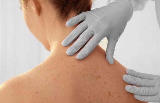 Özelde Dermatoloji Doktor Maaşı Ne Kadar?