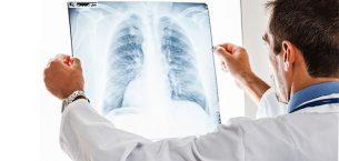 Özelde Radyoloji Doktor Maaşı Ne Kadar?
