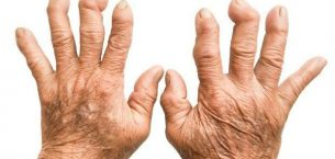 Romatoid Artrit (İltihaplı Romatizma)
