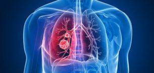 Tüberküloz (Verem) Hastalığının Tedavisi Nasıl Yapılır?