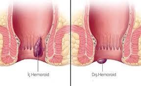Tromboze Hemoroid Ne zaman Tedavi Gerekir ?